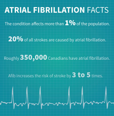 Atrial Fibrillation Facts: The condition affects more than 1% of the population. 20% of all strokes are caused by atrial fibrillation. Roughly 350,000 Canadians have atrial fibrillation. Afib increases the risk of stroke by 3 to 5 times.