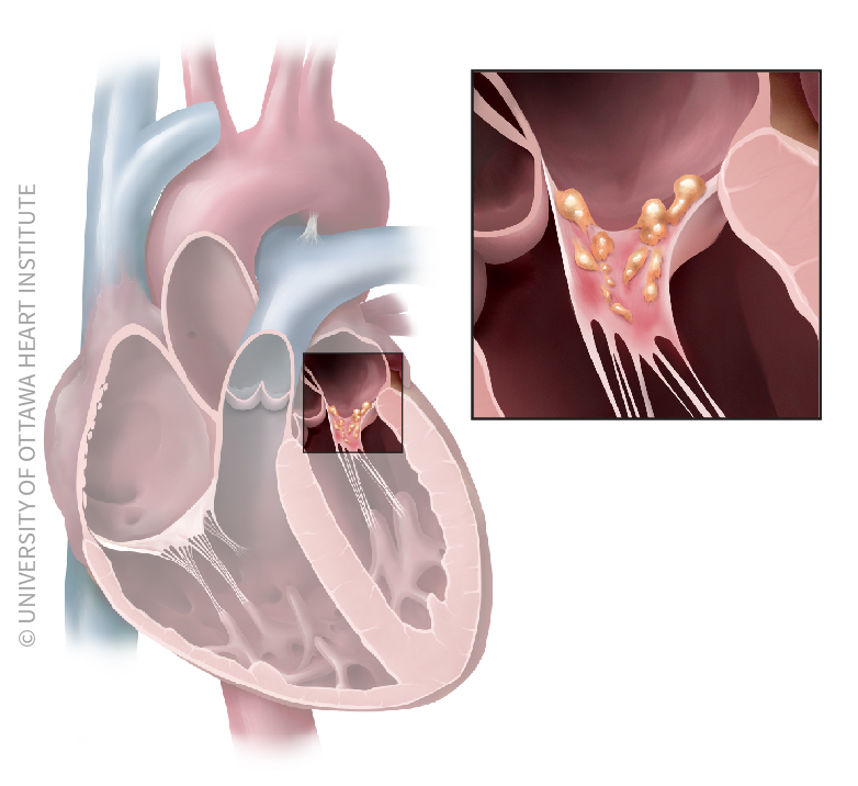Illustration of bacteria attaching to heart tissue causing endocarditis