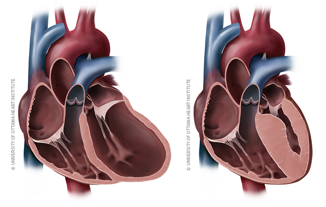 Illustration of dilated cardiomyopathy and hypertrophic cardiomyopathy