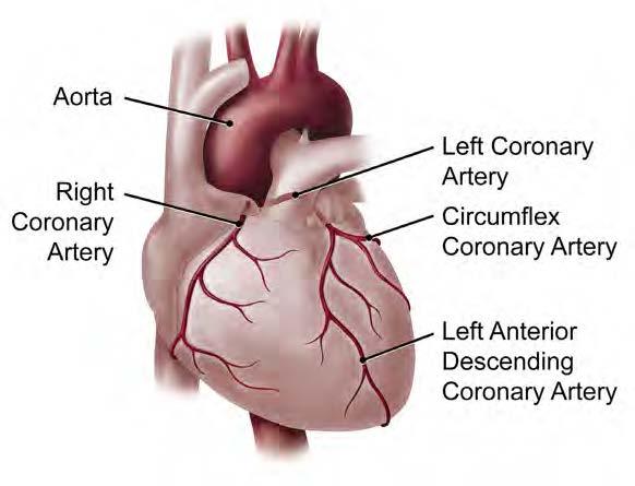 Coronary artery disease essay