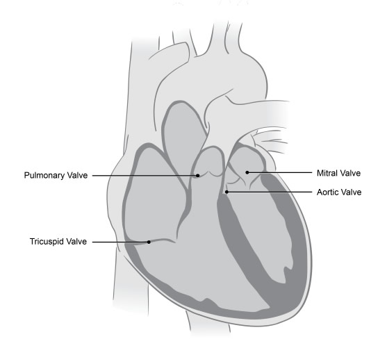 Medical illustration of a heart showing the valves which do not close tightly enough in mitral regurgitation.