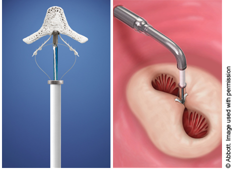 Image of the Mitraclip device and how it clips to the mitral valve