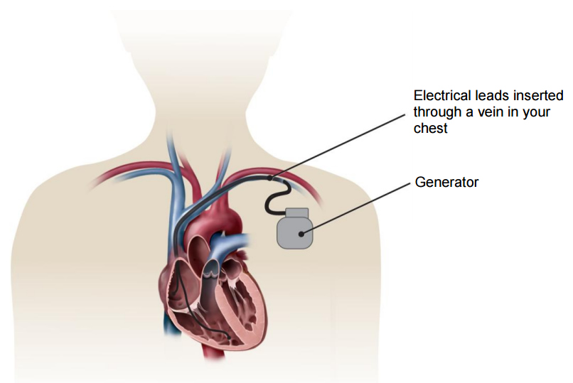 Illustration of a heart and a cardiac resynchronization device, showing the generator and the electrical leads inserted into the heart.