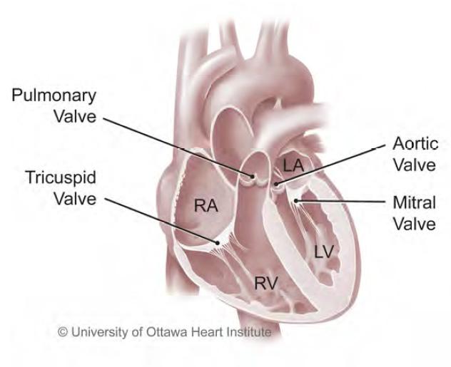 About Pulmonary Thromboendarterectomy University Of Ottawa
