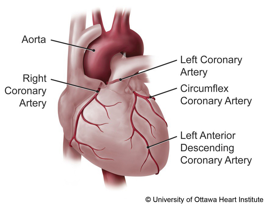Learn About Your Heart Surgery University Of Ottawa Heart Institute