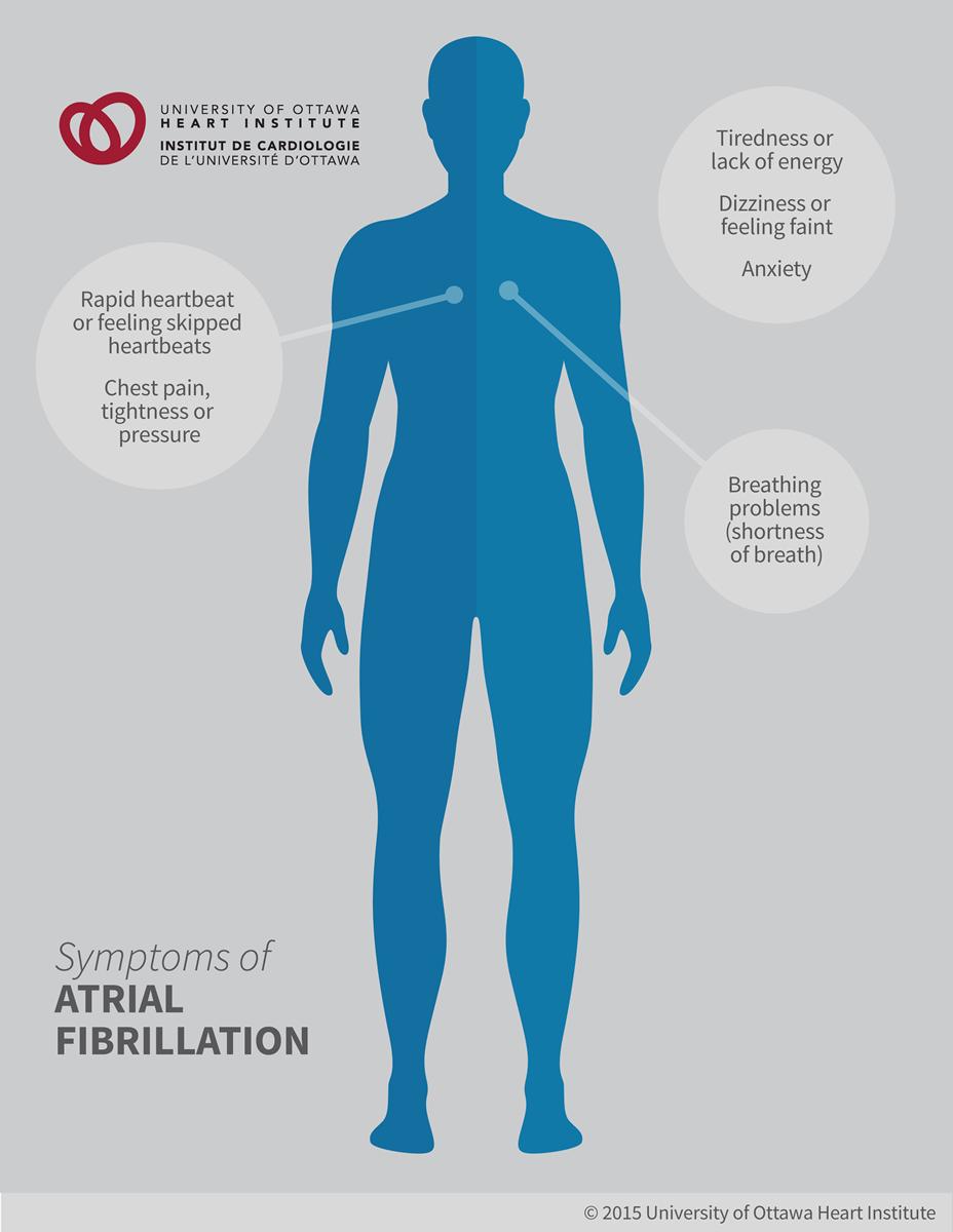 how to stop atrial fibrillation symptoms