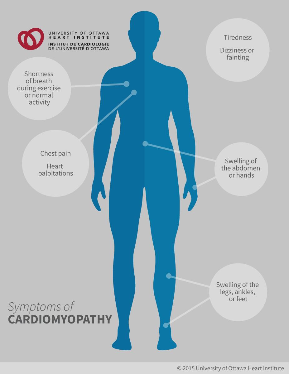 cardiomyopathy ottawa heart institute