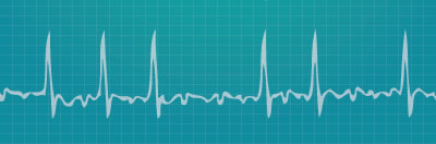 Heart rhythm readout