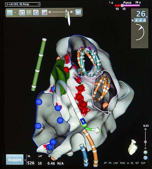Kathmandu University Medical Journal (KUMJ)   Page 5