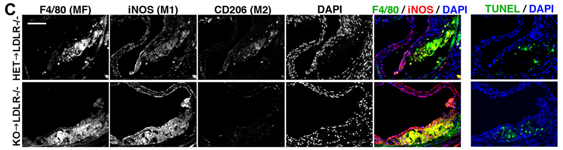 Mice without a functioning IRF2BP2 gene that were fed a high-fat diet developed more inflammatory macrophages within artery wall plaques than mice with the working gene, leading to worsening coronary artery disease.