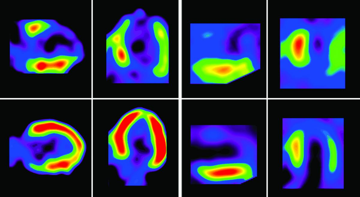 Imaging Technology Expected to Enhance Patient Access to