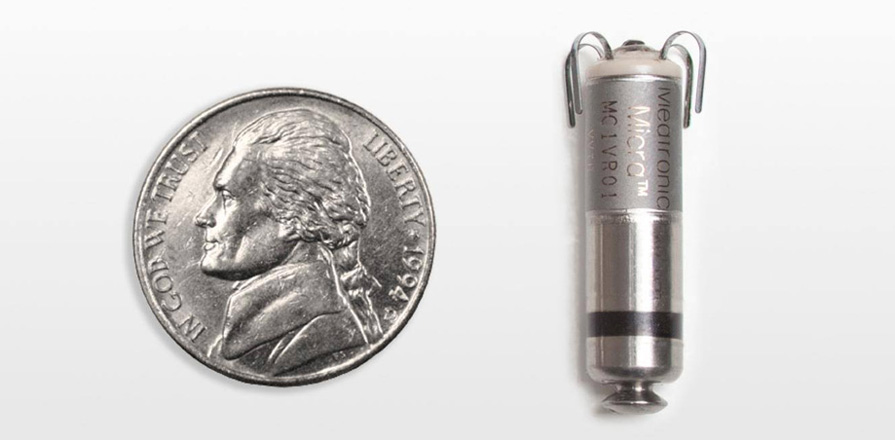 An American nickel next to a new leadless transcatheter pacing system