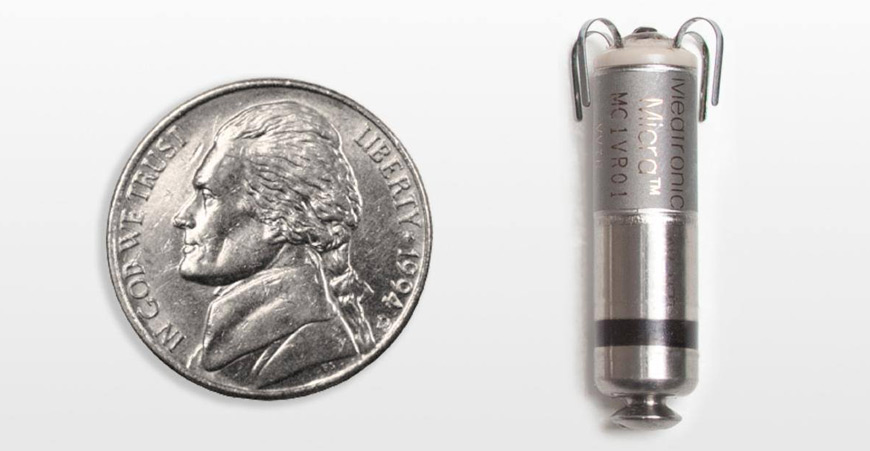 No bigger than a large vitamin capsule or an American nickel, new leadless transcatheter pacing systems are almost twenty times smaller than traditional models. Photo source: Medtronic