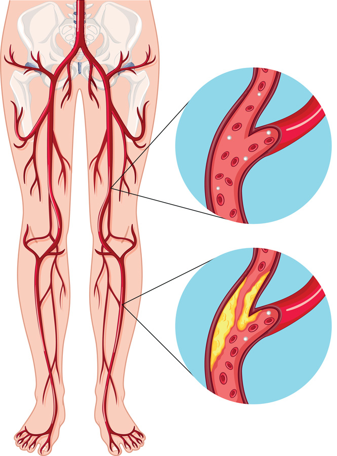 Medical illustration of leg veins in a patient suffering from PAD