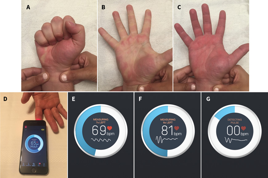 Demonstration of the modified Allen test and the smartphone-based heart rate-monitoring application. For a detailed description, read the study titled 'Photoplethysmography using a smartphone application for assessment of ulnar artery patency: a randomized clinical trial,' as published in the CMAJ. Image source: CMAJ.