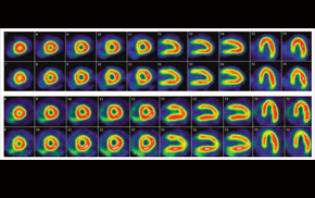 Myocardial perfusion imaging results of full and half-time scans showing how much blood reseaches different parts of the heart.