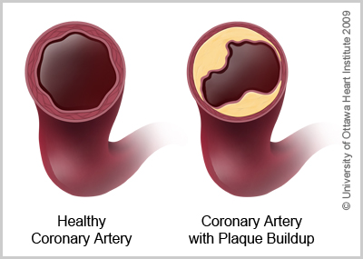 Illustration of a healthy coronary artery and a coronary artery with buildup of plaque