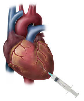 Image of needle injecting cell therapy directly to the heart