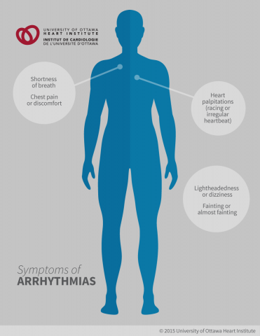 Symptoms of Arrhythmias: Heart palpitations (a racing or irregular heartbeat), Lightheadedness or dizziness, Fainting or almost fainting, Shortness of breath, Chest pain or discomfort