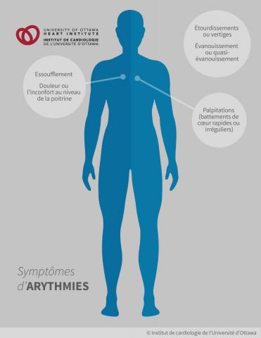 Symptômes d'arythmies : les palpitations (battements de cœur rapides ou irréguliers), les étourdissements ou vertiges, l'évanouissement ou quasi-évanouissement, l'essoufflement, la douleur ou l'inconfort au niveau de la poitrine