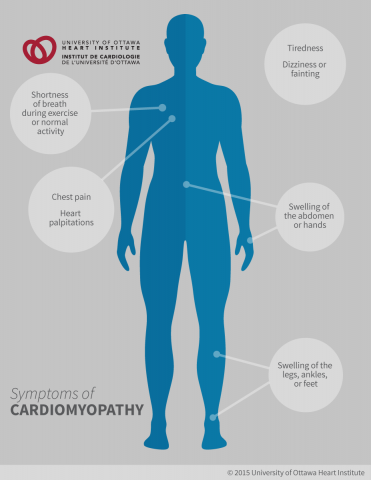 Symptoms of Cardiomyopathy: Shortness of breath, during exercise or normal activity, Dizziness or fainting, Chest pain (angina), Tiredness, Abnormal heart rhythms, Heart palpitations (a racing or irregular heartbeat); Swelling in the hands, legs, ankles, feet, or abdomen