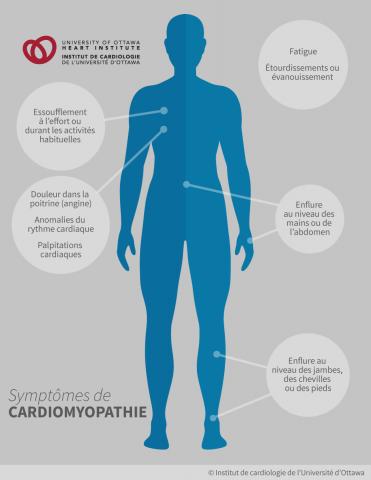 Symptômes de cardiomyopathie : essoufflement à l'effort ou durant les activités habituelles, étourdissements ou évanouissement, douleur dans la poitrine (angine), fatigue, anomalies du rythme cardiaque, palpitations cardiaques (battements de cœur rapides ou irréguliers), enflure au niveau des mains, des jambes, des chevilles, des pieds ou de l'abdomen