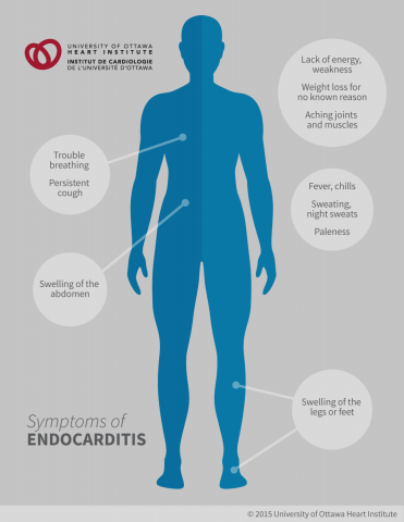 Symptoms of Endocarditis: Small areas of bleeding under the nails (splinter hemorrhages), Red, painless skin spots on the palms and soles (Janeway lesions), Red, painful nodes in the pads of the fingers and toes (Osler's nodes), Tiny purple or red spots on the skin, whites of the eyes, or in the mouth, Trouble breathing, Persistent cough, Weight loss for no known reason, Swelling of the feet, legs, or abdomen