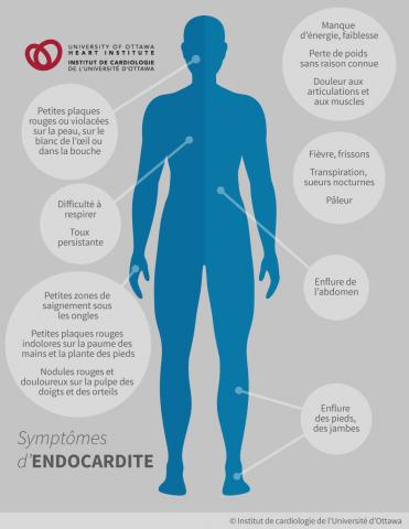 Symptômes d'endocardite : petites plaques rouges indolores sur la paume des mains et la plante des pieds (lésions de Janeway), nodules rouges et douloureux sur la pulpe des doigts et des orteils (nodules d'Osler), petites plaques rouges ou violacées sur la peau, sur le blanc de l'œil ou dans la bouche, difficulté à respirer, toux persistante, perte de poids sans raison connue; enflure des pieds, des jambes ou de l'abdomen