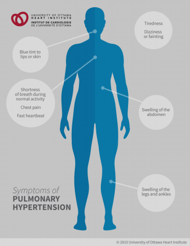 Symptoms of Pulmonary Hypertension: Shortness of breath during exertion during normal activity, Tiredness, Dizziness or fainting, Chest pain; Swelling in the ankles, legs, or abdomen; Fast heartbeat, A blue tint to the lips or skin