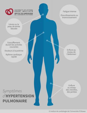 Symptômes d'hypertension pulmonaire : un essoufflement à l'effort – en montant un escalier ou durant les activités courantes, une fatigue intense, des étourdissements ou un évanouissement, des douleurs à la poitrine; une enflure au niveau des chevilles, des jambes ou de l'abdomen; un rythme cardiaque rapide, les lèvres ou la peau de teinte bleutée