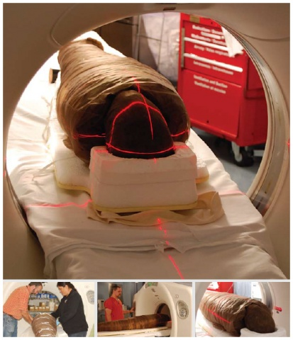 The 2,500-year-old Egyptian mummy Hetep-Bastet undergoing a CT scan at the Ottawa Heart Institute in 2008.