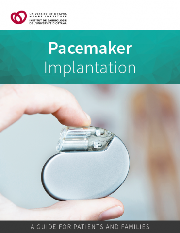 Pacemaker Implantation Patient Guide