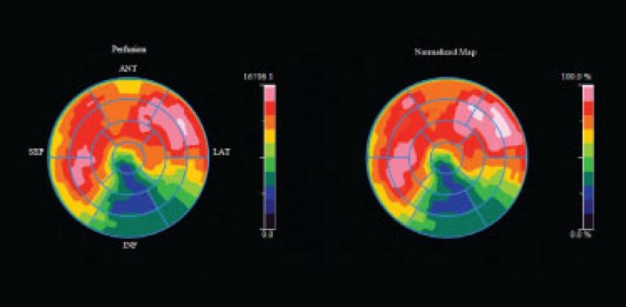 Cardiac imaging technology