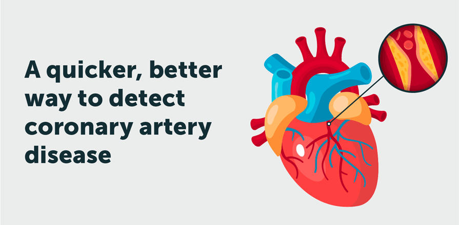 A quicker, better way to detect coronary artery disease