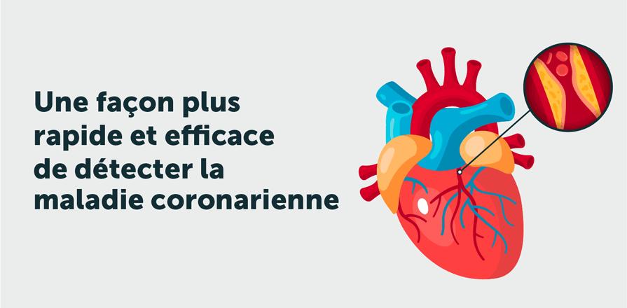 Une façon plus rapide et efficace de détecter la maladie coronarienne